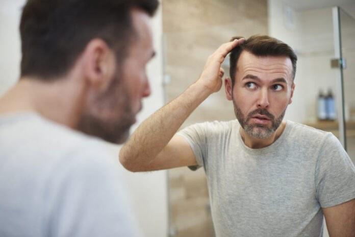 Remedii pentru caderea parului la barbati